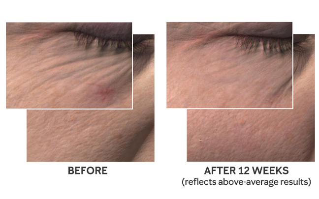 586a69723f8b Just 4 Weeks to Younger - Looking Skin1