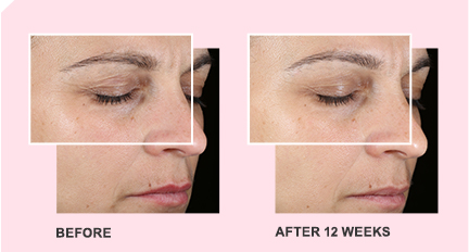 A woman's face before using TimeWise Miracle Set 3D from Mary Kay. A woman's face after using TimeWise Miracle Set 3D from Mary Kay for 12 weeks.