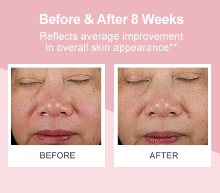 Before-and-after photos demonstrating improvement in overall skin appearance