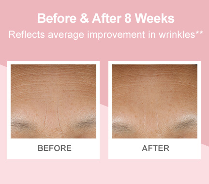 Before-and-after photos demonstrating improvement in forehead wrinkles