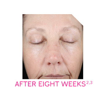 Panelist photo reflects average improvement in skin radiance and firmness after eight weeks of use.