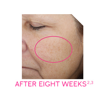 Panelist photo reflects average improvement in pigmentation after eight weeks of use.